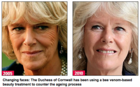 Before and after bee venom therapy to remove face wrinkles - Apitherapy